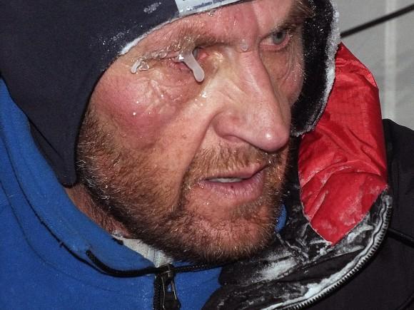Los efectos del frío en los rostros de la expedición rusa al K2 invernal