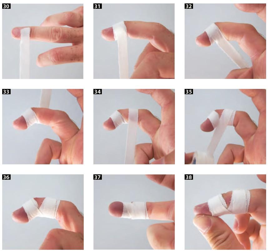 Vendaje para limitar el movimiento de extensión de la articulación interfalángica distal(IFD).